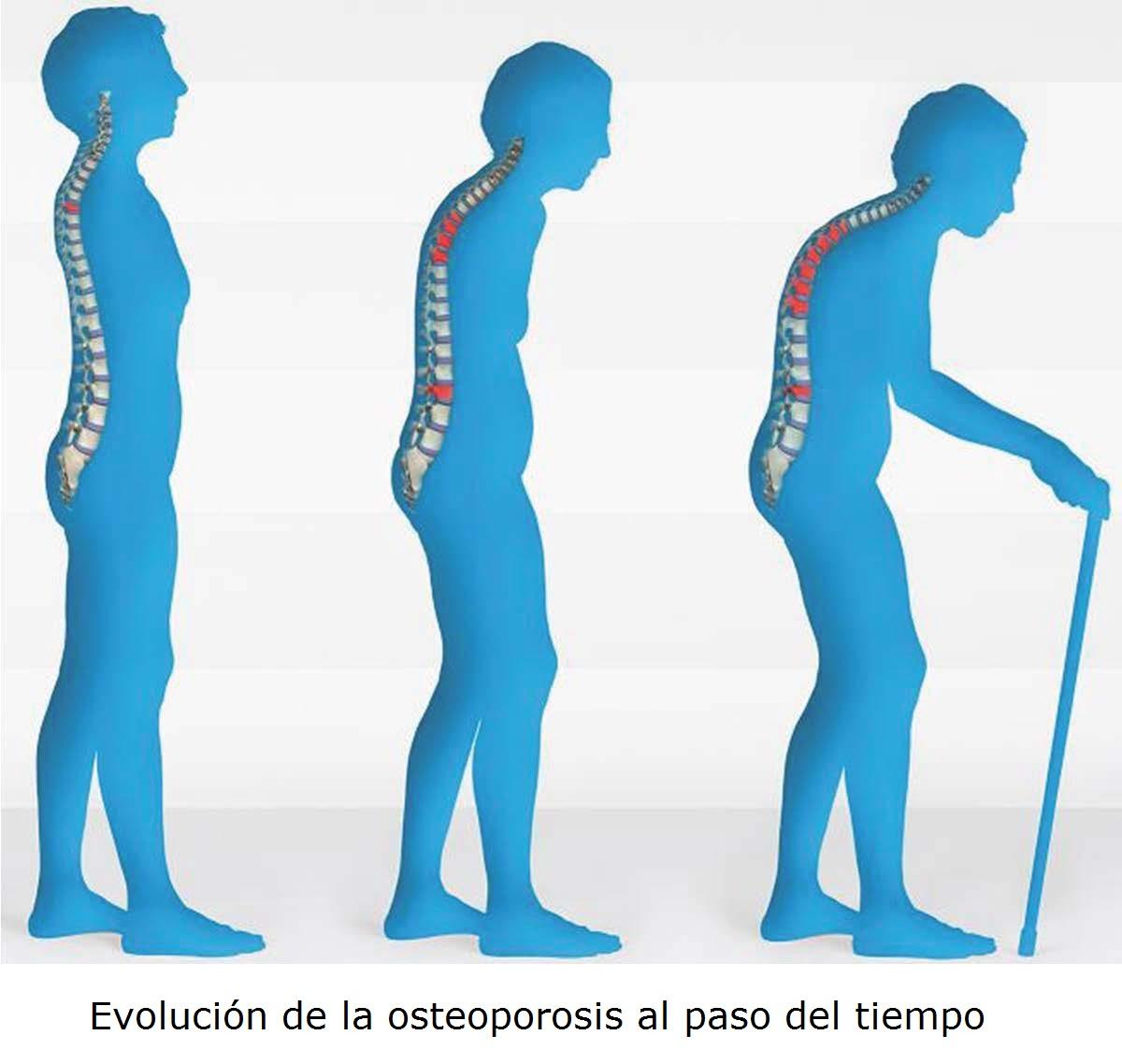 Evolución-osteoporosis